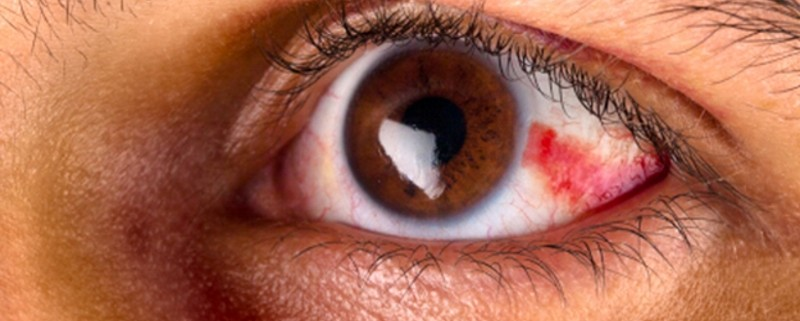 conjunctivitis or pink eye causes symptoms treatment and